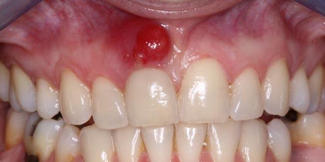 Causas y consecuencias del absceso dental - Odontologia